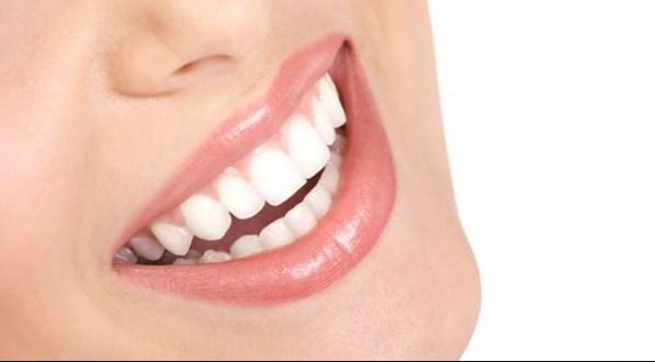 Bembeyaz Dişler