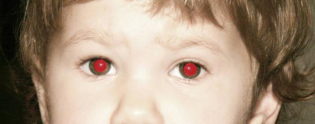 Kırmızı Göz Rahatsızlıkları